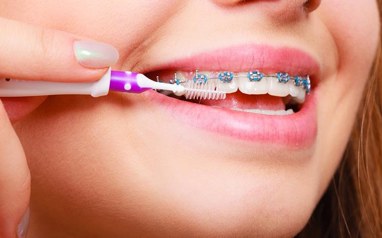 Orthodontic Problems   Specialist Orthodontics Treatment Mackay   Torque  Orthodontics